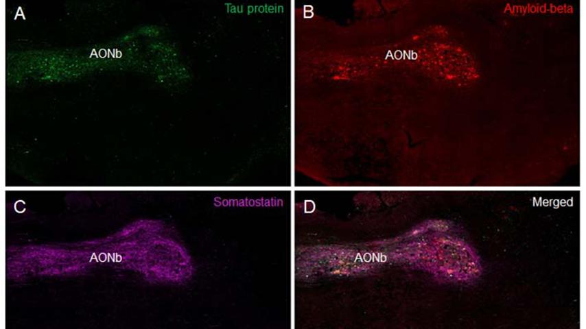 párkinson alzhéimer olfato